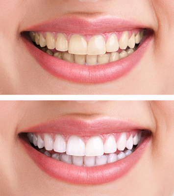 Before and after photos for information on free teeth whitening, from Plano TX dentist Miranday Lacy DDS.