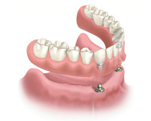 Diagram of a lower snap-on denture for information on Plano TX affordable dentistry from Dr. Miranda Lacy.