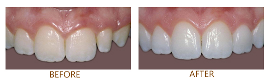 Before-and-after photos of porcelain crowns, which are available from Plano, TX dentist Dr. Miranda Lacy.
