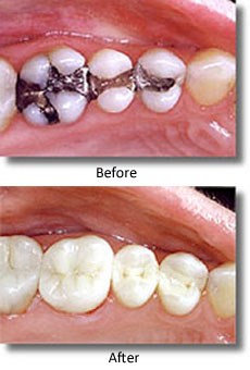 Vertical before-and-after composite filling photos. The top photo shows three lower molar teeth with silver fillings, and in the bottom photo, they are replaced with composite.