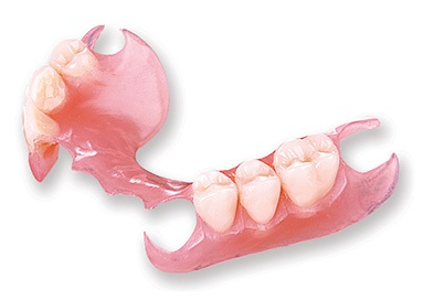 Photo of a valplast partial denture - an affordable alternative to a metal-clasped partial.