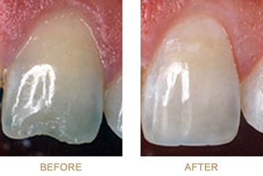 Before-and-after photos of a chipped tooth repaired with dental bonding.