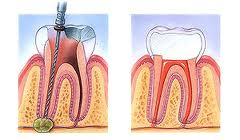 Side-by-side diagram of an infected tooth being cleaned out with root canal treatment (left) and a healthy tooth to the right.