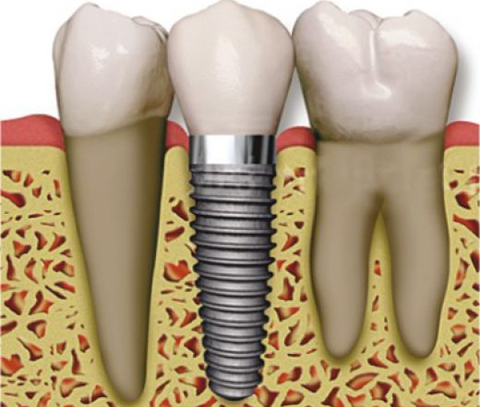 Diagram of a dental implant between natural teeth from Plano dentist Miranda Lacy DDS.