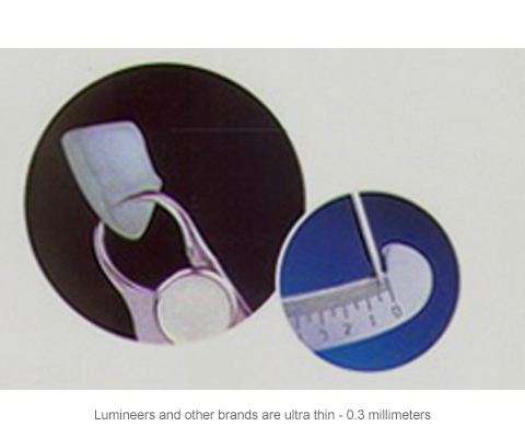 Diagram of a porcelain veneer and a veneer for Lumineers from Plano dentist Miranda Lacy DDs.